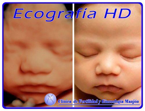 ecografia HD